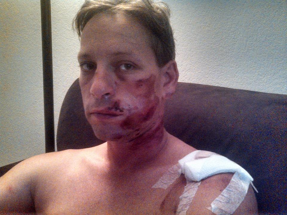 Mark Meuser accident